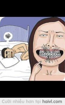 Đây là lí do e không cho gấu đi kẹp răng :v